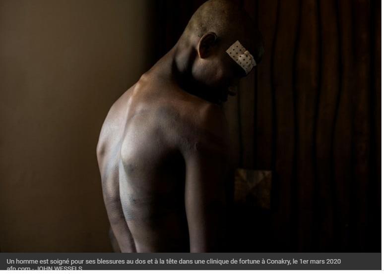 Un homme est soigné pour ses blessures au dos et à la tête dans une clinique de fortune à Conakry, le 1er mars 2020 afp.com - JOHN WESSELS