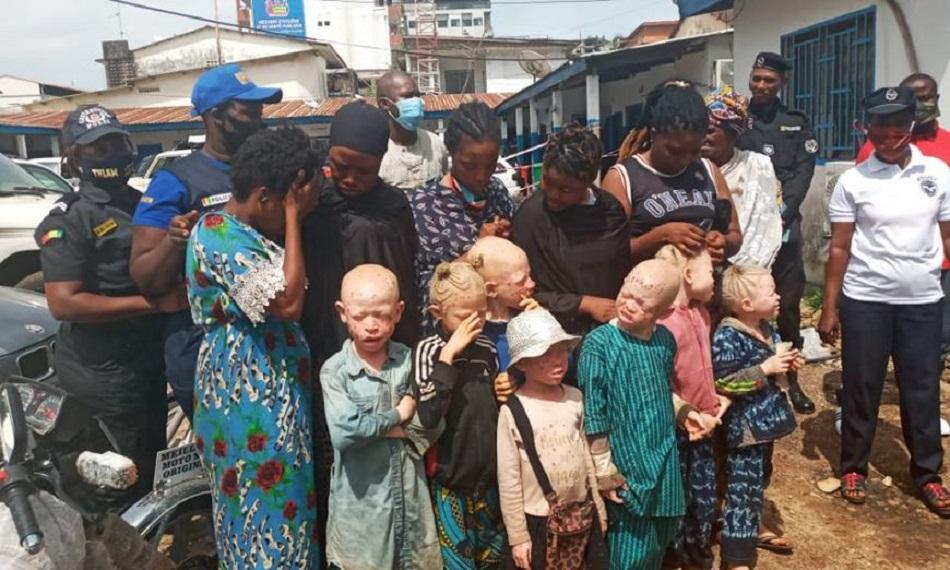Conakry: Un groupe de femmes arrêté pour l'exploitation des enfants albinos à la mendicité