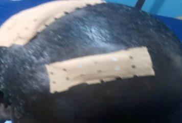 Côte d'Ivoire : Un tricheur présumé au Bac brise une bouteille sur la tête d'un surveillant à Sinfra